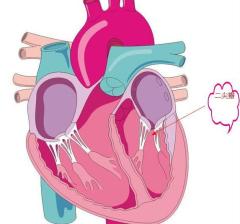 我国心脏瓣膜疾病治疗技术发展现状,自膨胀瓣膜是未来国产主力方向「图」