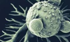 2020年肿瘤治疗行业发展现状及趋势分析,原油主要依赖进口「图」